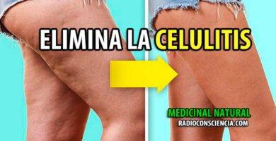 ELIMINA-CELULITIS-REMEDIO-NATURISTA-NATURAL-MEDICINA