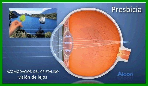 PRESBICIA-remedio-natural-ojo-cura-naturista