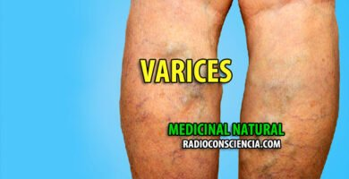 REMEDIO-NATURISTA-VARICES-NATURAL