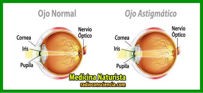 astigmatismo-ojos-cura-remedios-naturales-naturista