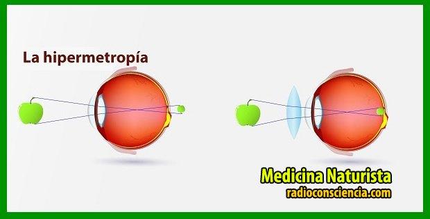 hipermetropia-causas-cura-remedios-naturales-naturistas