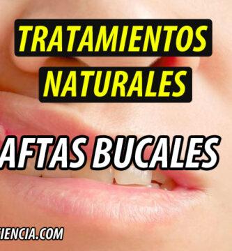 TRATAMIENTO NATURAL AFTAS BUCALES