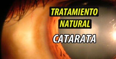 TRATAMIENTO NATURAL CATARATA