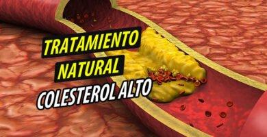 TRATAMIENTO NATURAL Colesterol Alto
