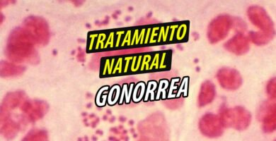 TRATAMIENTO NATURAL GONORREA