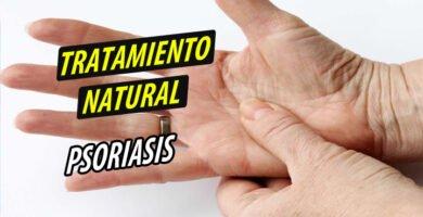 TRATAMIENTO NATURAL PSORIASIS
