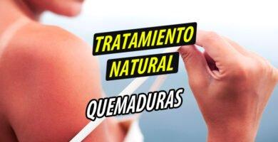 TRATAMIENTO NATURAL QUEMADURAS
