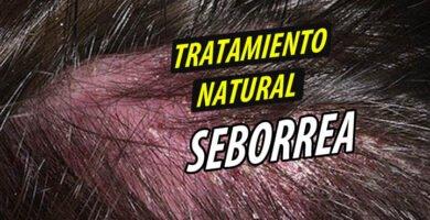 TRATAMIENTO NATURAL SEBORREA
