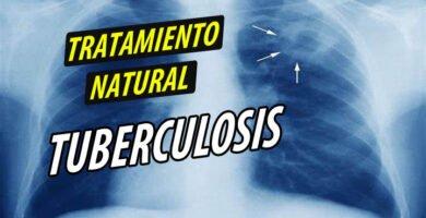 TRATAMIENTO NATURAL TUBERCULOSIS