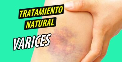 TRATAMIENTO NATURAL VARICES