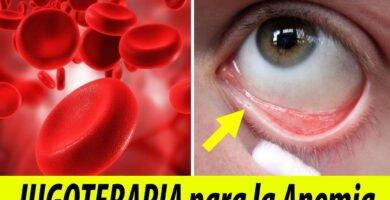 anemia jugo jugoterapia remedios