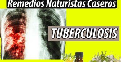 REMEDIOS NATURISTAS CASEROS TUBERCULOSIS pulmonar TBC