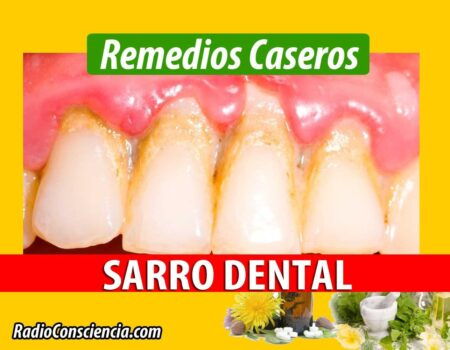 Remedio para el Sarro dental