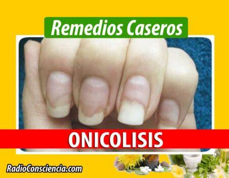 Remedio para la Onicólisis